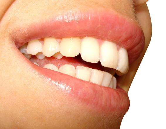 Mikor érdemes magán fogorvoshoz menni?